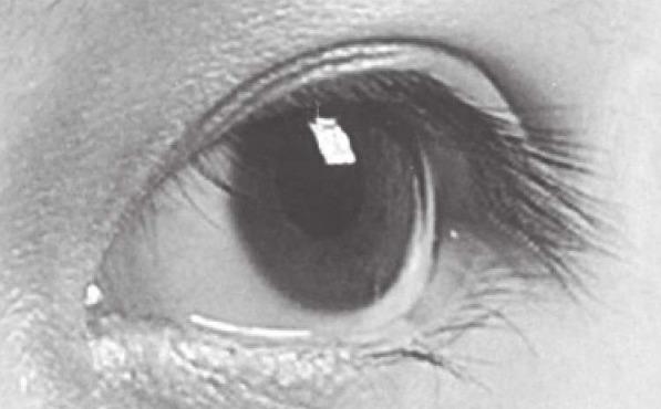 眼睛参考图片