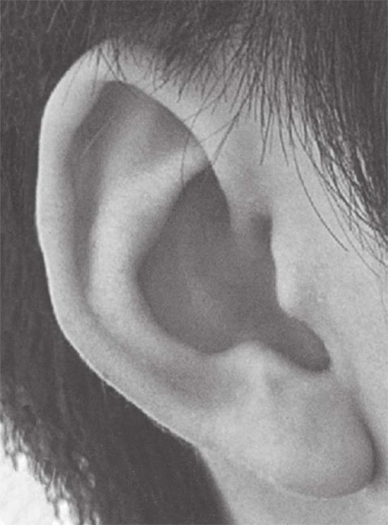 耳朵参考图片
