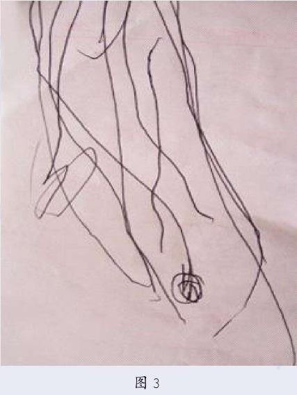 罗恩菲尔德的儿童画发展阶段
